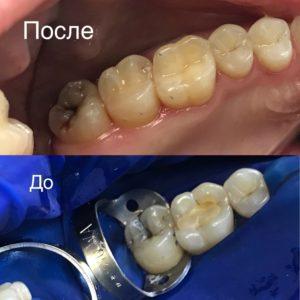 Как выглядят зуб после лечения кариеса