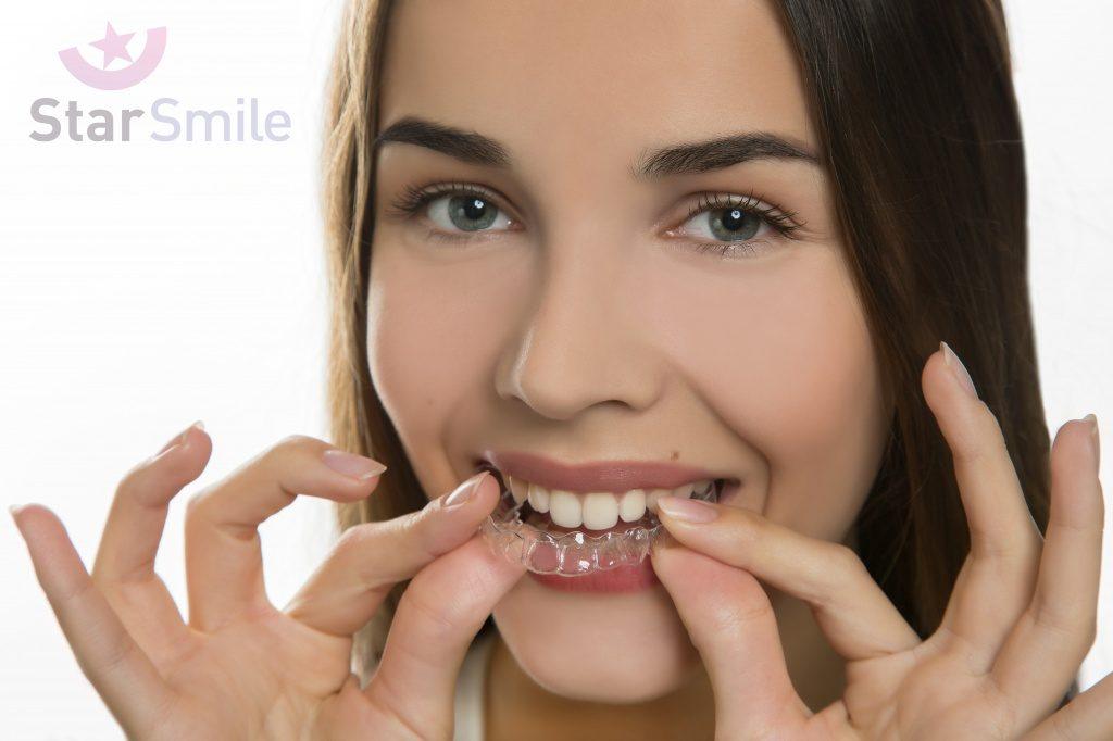 Капы Star Smile для исправления прикуса