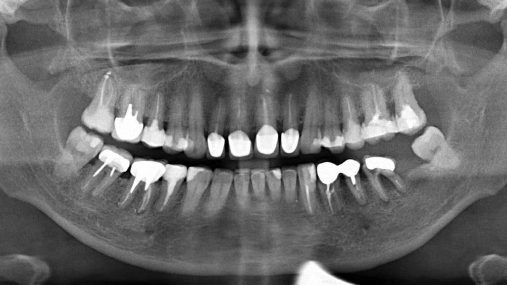 Рентген зубов в городе Раменское