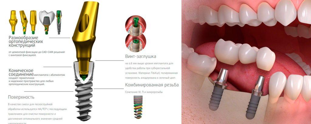 Установка имплантов зуба