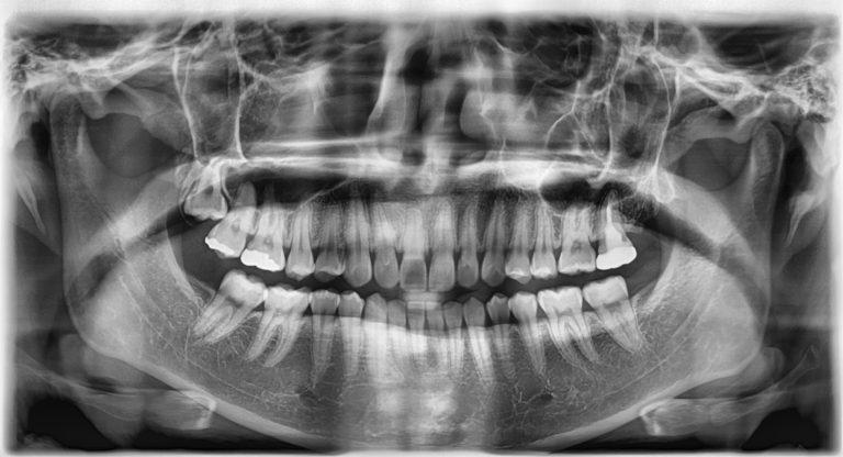 Панорамный снимок зубов и рентген